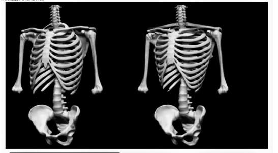 skeletal-change